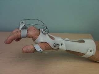 radial_nerve_palsy_splint