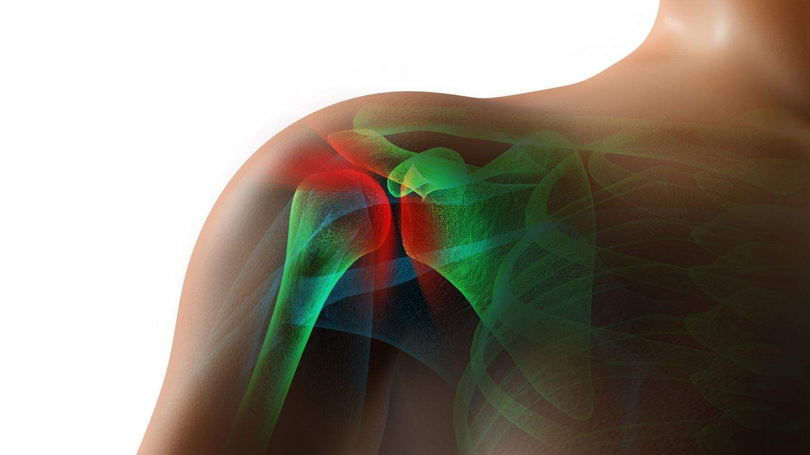 frozen-shoulder-joint-pain-jqbaker-iStock_31204598_MEDIUM