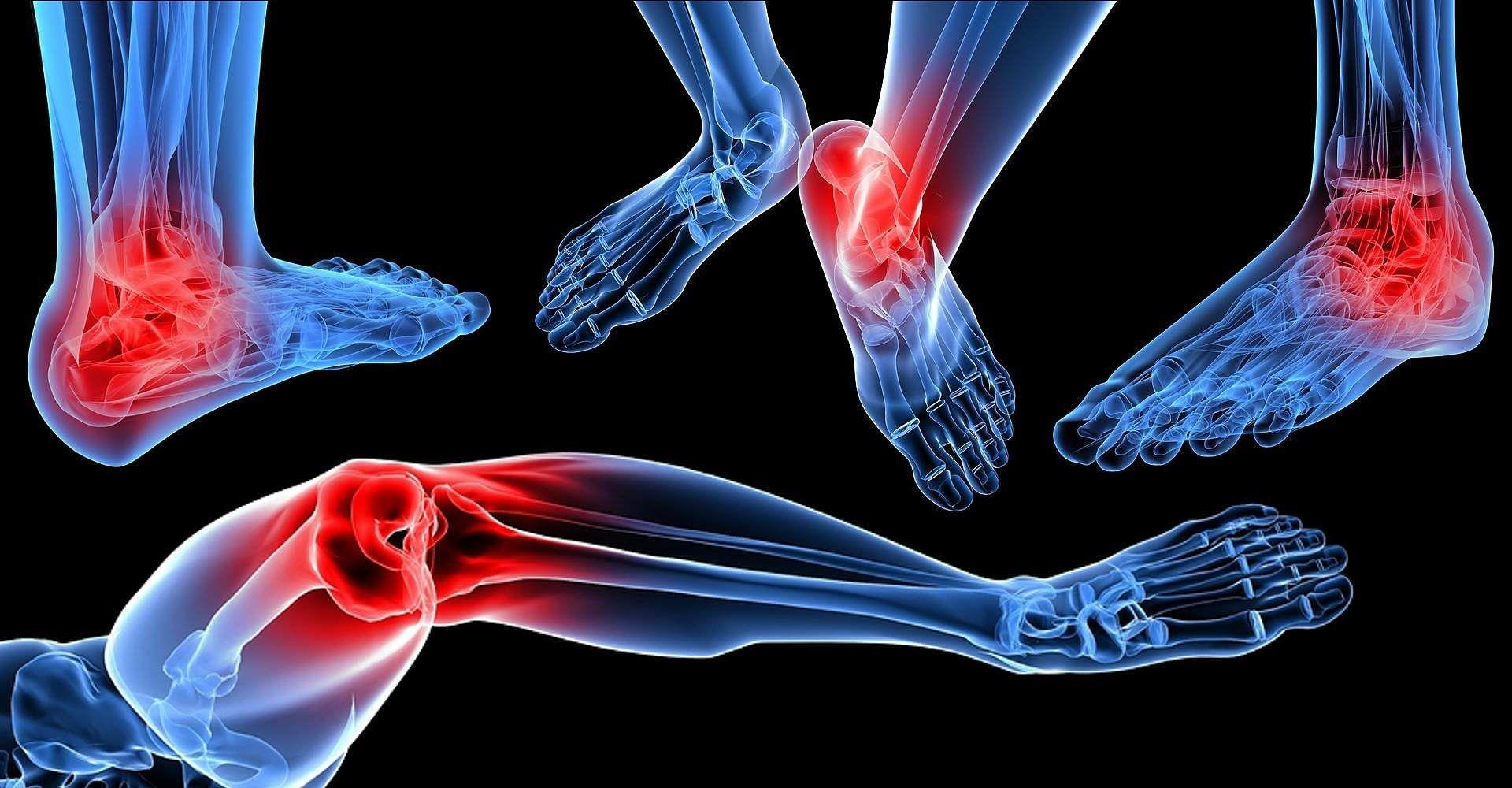kelowna-foot-pain-parallax
