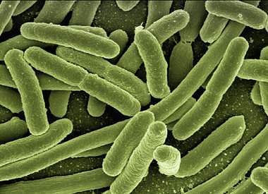 koli-bacteria-123081_1920-1200x868