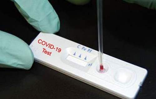 148 fresh cases take Arunachal's COVID-19 tally to 4,360