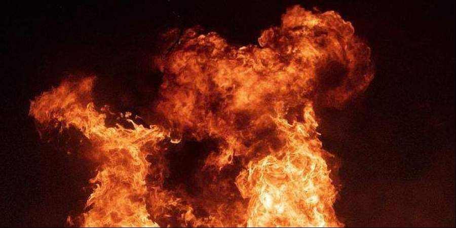College student found half-burnt near highway in UP